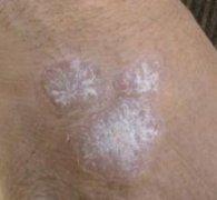 银屑病的治疗要注意哪些方面?