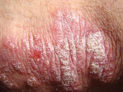 关于关节银屑病瘙痒症状